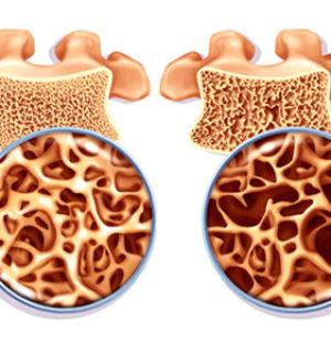Как правильно питаться что бы укрепить кости?
