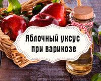 Яблочный уксус— помощь при варикозе