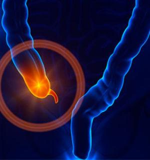 Как правильно питаться после удаления аппендицита?